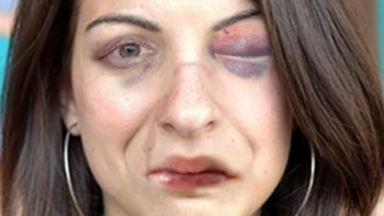 'Beat Up Anita Sarkeesian' Game: Representation of Physical Deterioration Due to Violence